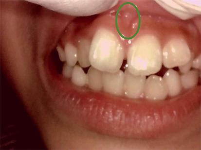 過剰歯_画像